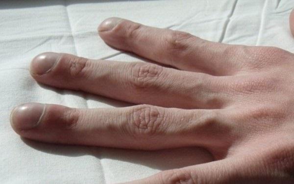 4 triệu chứng trên ngón tay cho thấy chất độc trong cơ thể đang bùng phát: Đi khám gan, phổi ngay kẻo muộn